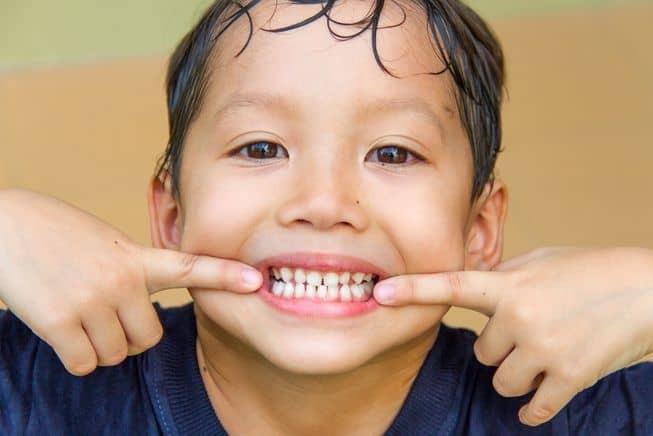 kids-teeth.jpg.653x0_q80_crop-smart